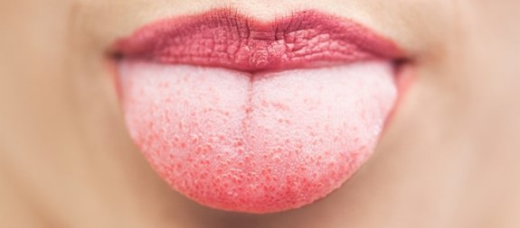 Laterales de la lengua